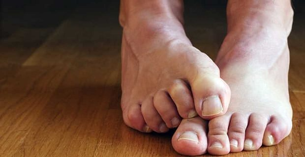 Study: Feet Ranked the Least Sexiest Body Part