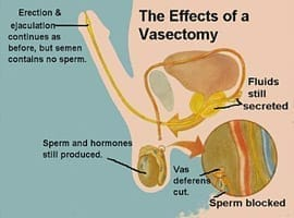 vasectomy-private-man-expat