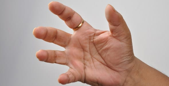 Photo of man's hands